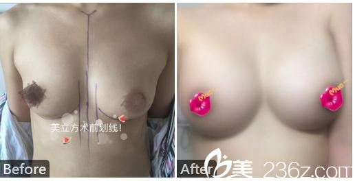 东莞美立方李志刚做的隆胸案例