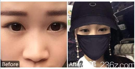 东莞莞城美立方整形医院张克做的双眼皮案例