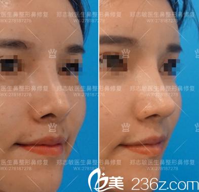 东莞美立方郑志敏做的鼻综合修复案例图