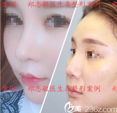 东莞美立方郑志敏做的肋软骨鼻综合隆鼻子案例