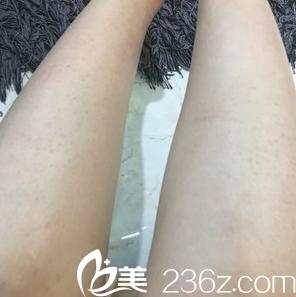 我在延吉李京云整形医院做了腿部激光脱毛,毛毛腿瞬间变光滑了