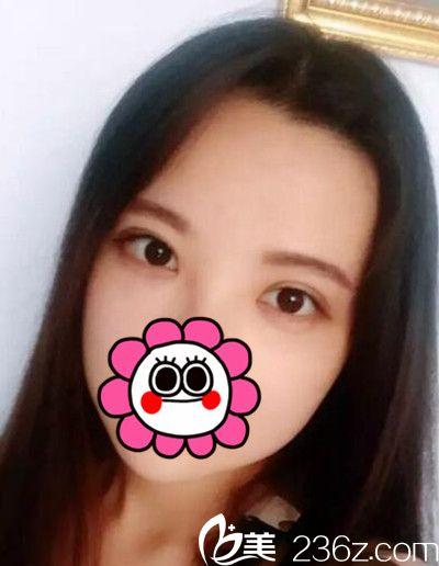 我在吉林梁惟苓做完双眼皮手术后1个月终于告别了双眼皮贴