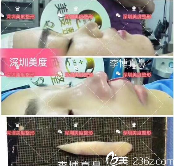 深圳美度李晓平自体肋软骨隆鼻案例