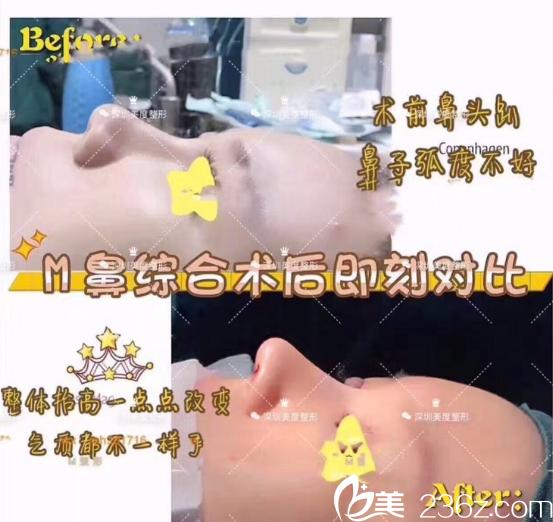 深圳美一度李晓平医生鼻综合隆鼻案例