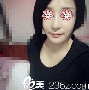 美女找上海伊莱美邱文苑做假体隆鼻,变得更加完美