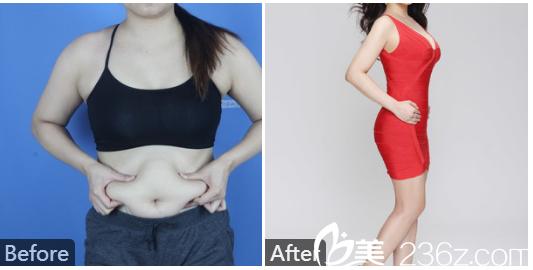 广州美莱张毓医生做的全身吸脂和脂肪隆胸案例