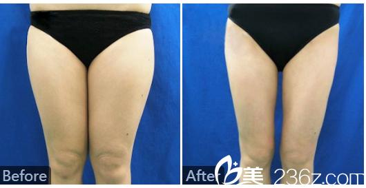 广州美莱张毓做的大腿抽脂案例图