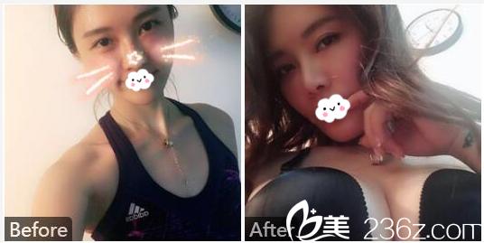 广州美莱张毓做的自体脂肪隆胸案例