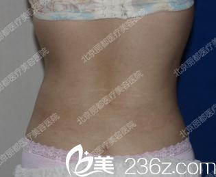 很想甩掉腰腹部赘肉,看来在北京丽都医院找石冰做了吸脂是对的
