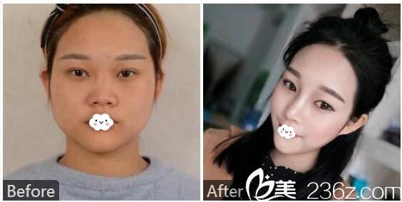 广州紫馨赵晟弼隆鼻子案例