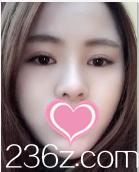 呆萌妹子在北京燕化医院整形美容科找赵众做了切开双眼皮+硅胶隆鼻后灵气了许多