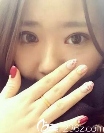 单眼皮软妹子在郑州茉莉亚做双眼皮效果超棒 美呆了小伙伴