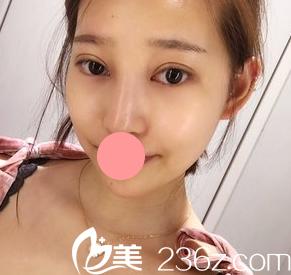 我找延吉尹世整形医院的尹庆爱医生做了韩式三点双眼皮,七天就恢复的很自然了