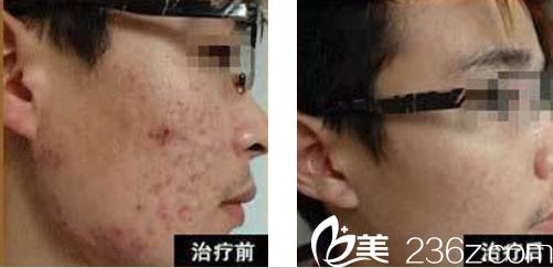 在亳州康美皮肤病医院做彩光去青春痘治疗前后对比图