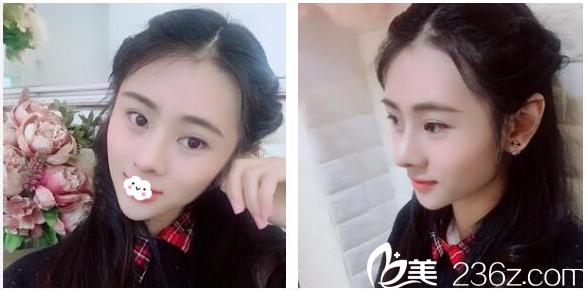 看吧,这就是我找广州珈禾医疗美容整形医院景丽峰做的膨体加肋软骨隆鼻案例