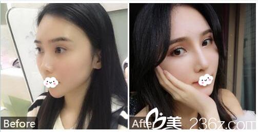 广州紫馨金孝宪院长隆鼻和脂肪填充案例