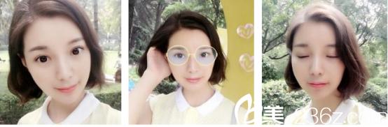 青岛本地妹子做了全切双眼皮当做给自己24岁的生日礼物