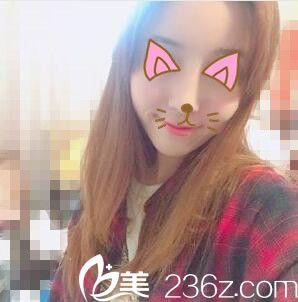 自从去上海天大找任天平做的鼻综合,不用化妆都很惊艳