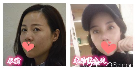 合肥童颜堂整形美容医院怎么样?看医院鼻综合隆鼻案例前后对比图