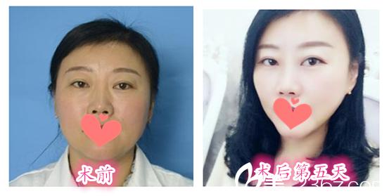 在合肥童颜堂整形美容医院做线雕V脸提升案例效果一览