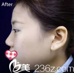 迫不及待的跟大家分享我在益阳德美整形做注射隆鼻+隆下巴术后即刻效果