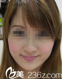 在沈阳孟强美容诊所注射瘦脸针一个月后我终于摆脱了嘟嘟脸!