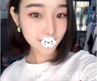 在郑州美丽时光做耳软骨隆鼻一个月就恢复了 朋友都被我惊艳到