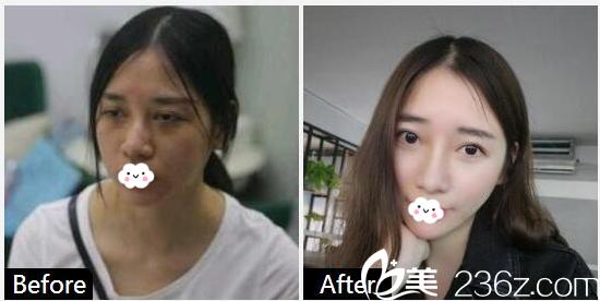 广州海峡李希军鼻综合鼻翼缩小案例
