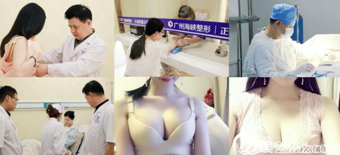 广州海峡闫爱跃做的隆胸案例