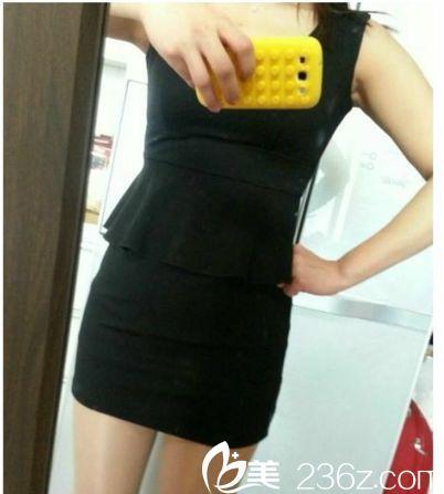 在南京找王志军院长吸脂后,我扔掉了衣柜里XXL码的衣服