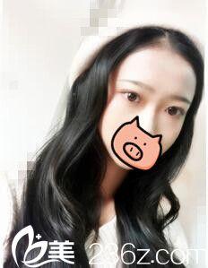 昆明艺星刘哲延为我做的全切双眼皮,有没有惊艳到你