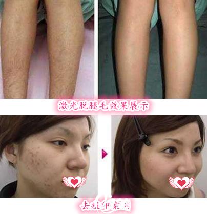 去芜湖华美整形美容医院做激光脱腿毛案例+去痘印案例效果展示