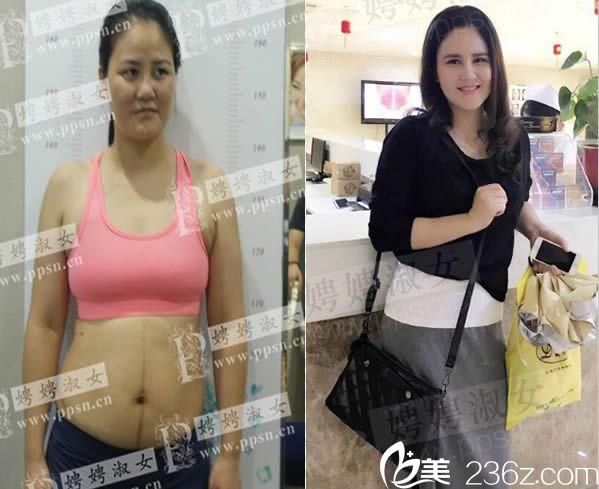 泉州娉娉淑女吸脂瘦身前后对比案例