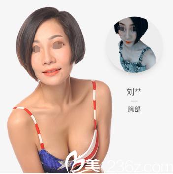 南京美莱丰胸案例