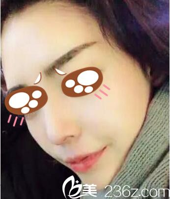 上海九院余力为我做的假体隆鼻,没想到我也能拥有韩剧女主角般完美的鼻子