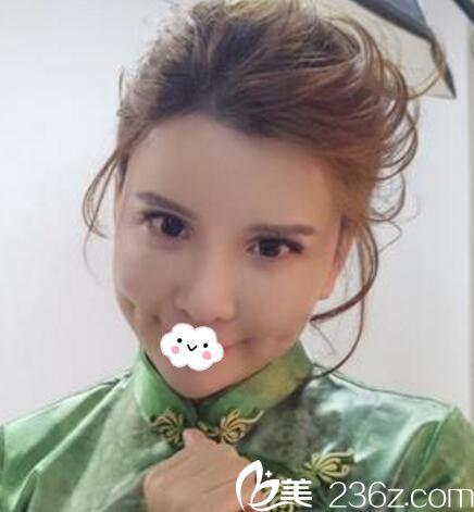 男友赞美我鼻子漂亮 说我到天津联合丽格让巫文云硅胶隆鼻选择太正确!