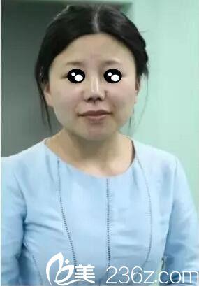 上海第九人民医院整形外科韦敏术前照片1