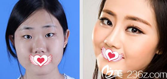 在淮南美橙整形美容医院做双眼皮+开眼角+隆鼻+下颌角整形案例效果对比