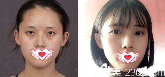 去淮南美橙整形美容医院做双眼皮+上睑提肌案例对比图