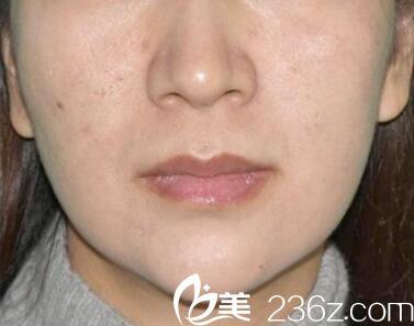 在郑州虎珂整形甩掉双下巴去掉鼻唇沟 感觉肌肤像被亲了一下