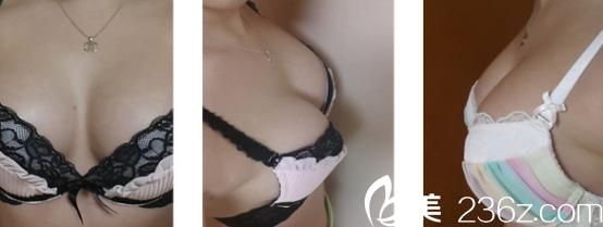我在威海孙漫做的假体隆胸好像太大了,贵倒是罢了