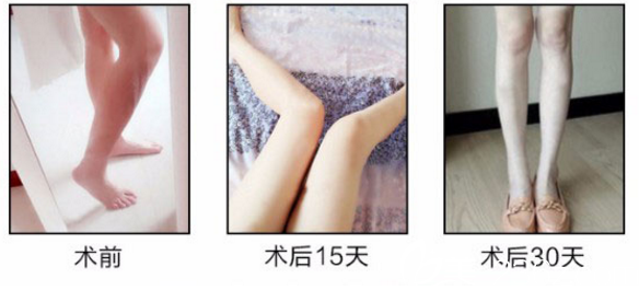 肉毒素瘦小腿案例