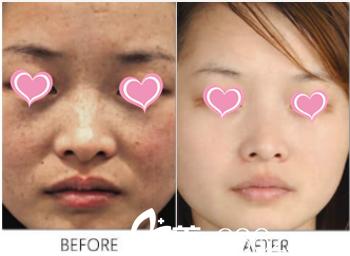 北京薇琳医疗美容医院王瑞鹃皮秒激光祛斑案例