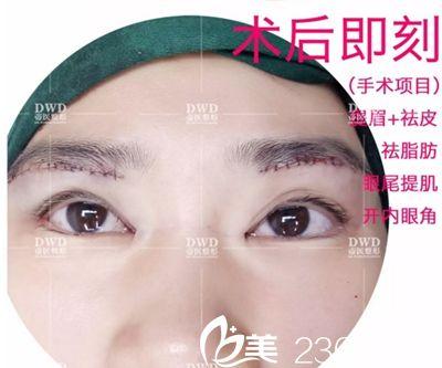 天生双眼皮但是眼睛小?南宁帝医开眼角手术帮你拥有灵动大眼
