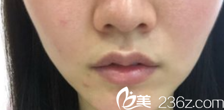 """在蚌埠第一人民医院做了唇部注射物出去+M唇手术后 """"香肠唇""""变成了性感嘟嘟唇"""
