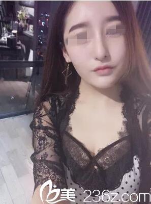 武汉新至美自体耳软骨隆鼻效果图片展示和案例分享