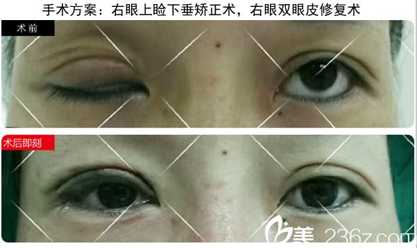 成都刘辅容上睑下垂矫正+双眼皮修复手术案例