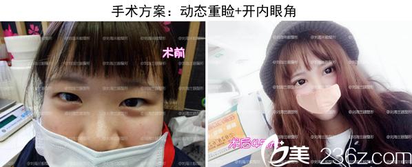 成都莱尹刘辅容双眼皮+开内眼角案例