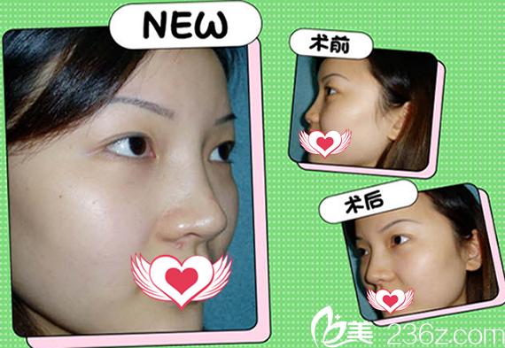 在蚌埠华美整形美容医院做鼻综合隆鼻术前术后对比图