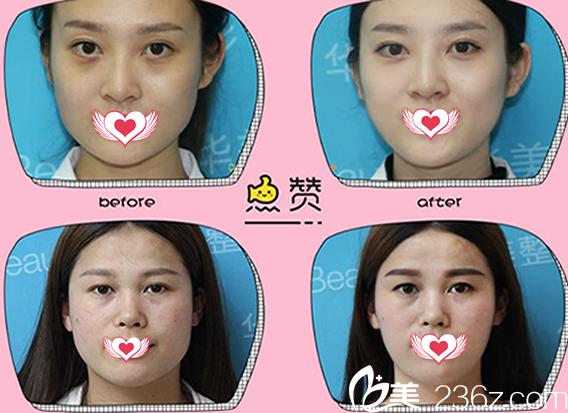 来蚌埠华美整形美容医院注射瘦脸针瘦脸案例前后效果展示